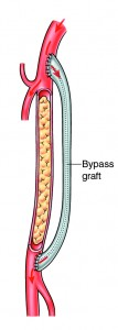 Bypass Graft
